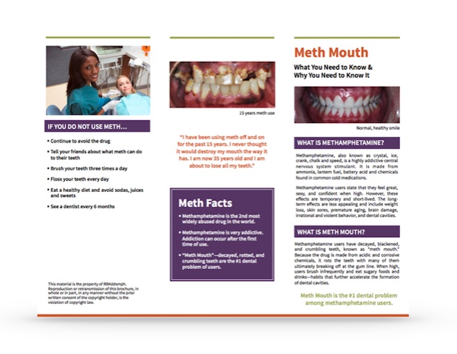 meth mouth prevention brochure