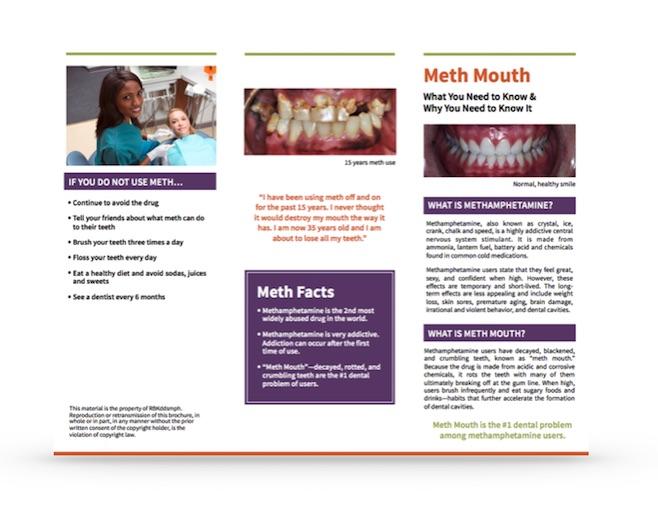meth mouth brochure