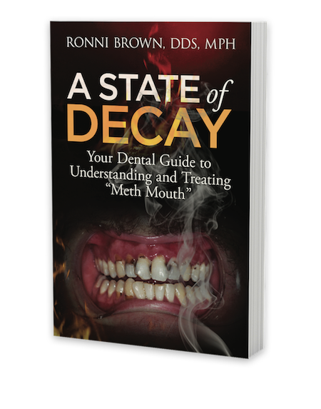 A State of Decay Meth Mouth book by Dr Ronni Brown